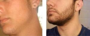 борода-300x122