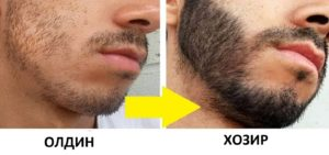 борода2-300x141